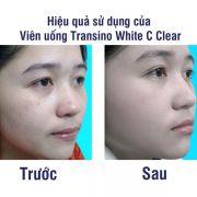 Viên uống Transino White C Clear 120 viên trắng da trị nám