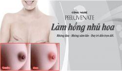 Kem làm hồng nhũ hoa mibiti prudente nuwhite n1 review từ Quỳnh Jandi