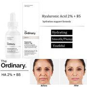 Serum dưỡng ẩm phục hồi da The Ordinary Hyaluronic acid 2% + B5